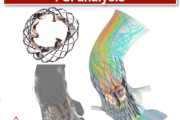 Fluid-Structure Interaction Analysis of TAVR Valve Performances in Living Heart Human Model