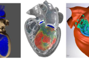 Blood Flow Modeling in a Beating Human Heart with Appliccations in Medical Device Design and Patient Care