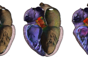 Fluid-Structure-Interaction in a Beating Human Heart Model