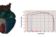Personalized Cardiovascular Modeling for Medical Device Efficacy Drug Ssafety and Clinical Guidance