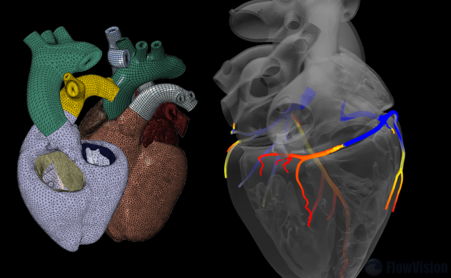Left: Living Heart Project, Right: Digital Angiography
